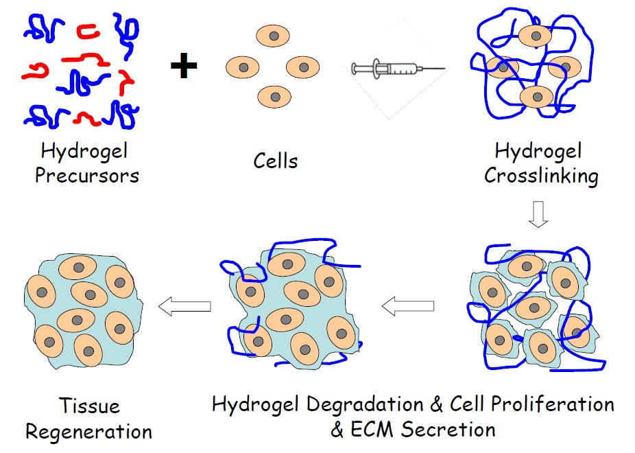 Schematic illustration of injectable hydrogel for tissue regeneration approaches